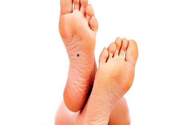 Nốt ruồi trong lòng bàn chân Trái - Phải ở nam giới đàn ông
